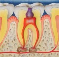 Endodontic specialist London